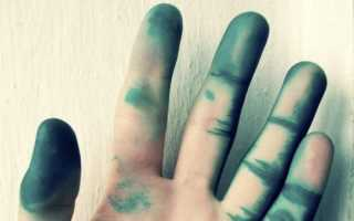 Чем отмыть зеленку с кожи лица, тела и рук, ногтей?