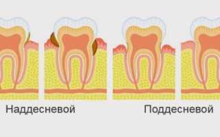 Как правильно чистить зубы – рекомендации для взрослых и детей