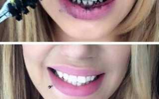 Отбеливание зубов активированным углем в домашних условиях – можно ли и как часто